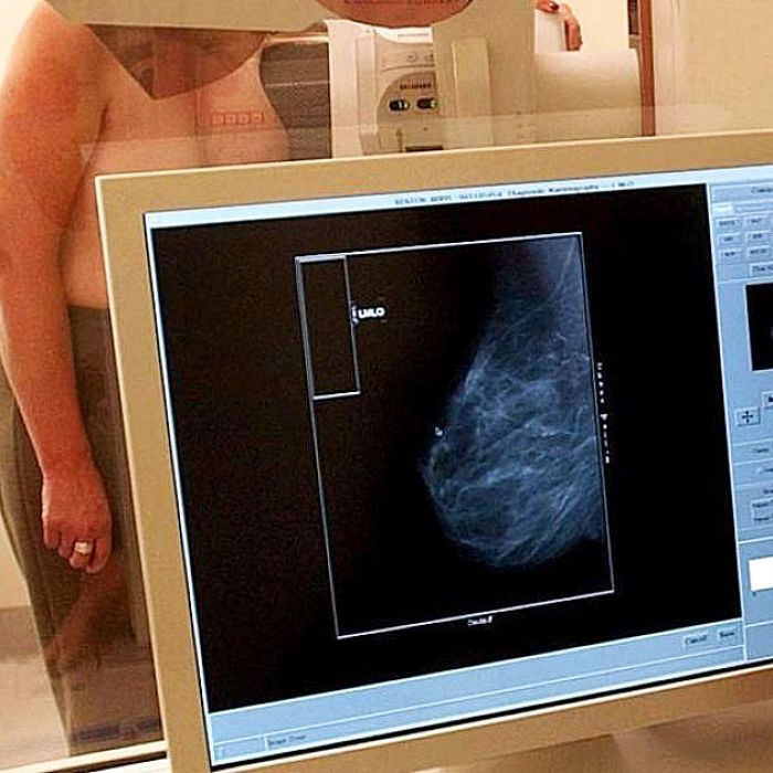 Privately insured breast cancer patients hit with 'huge burden' of fees