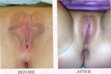 photos of labiaplasty, vaginal rejuvenation and hymen reconstruction