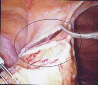 The Lost Mirena: What Investigations Are Required ? An Intraperitoneal