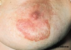Irritant dermatitis of the areola mimicking Paget's disease