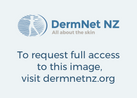 Common skin lesions  Introduction to skin surgery  DermNet NZ