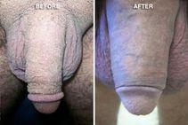 penileenhancement jpg
