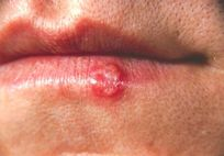 Herpies Symptoms: How do You Know if You are Infected