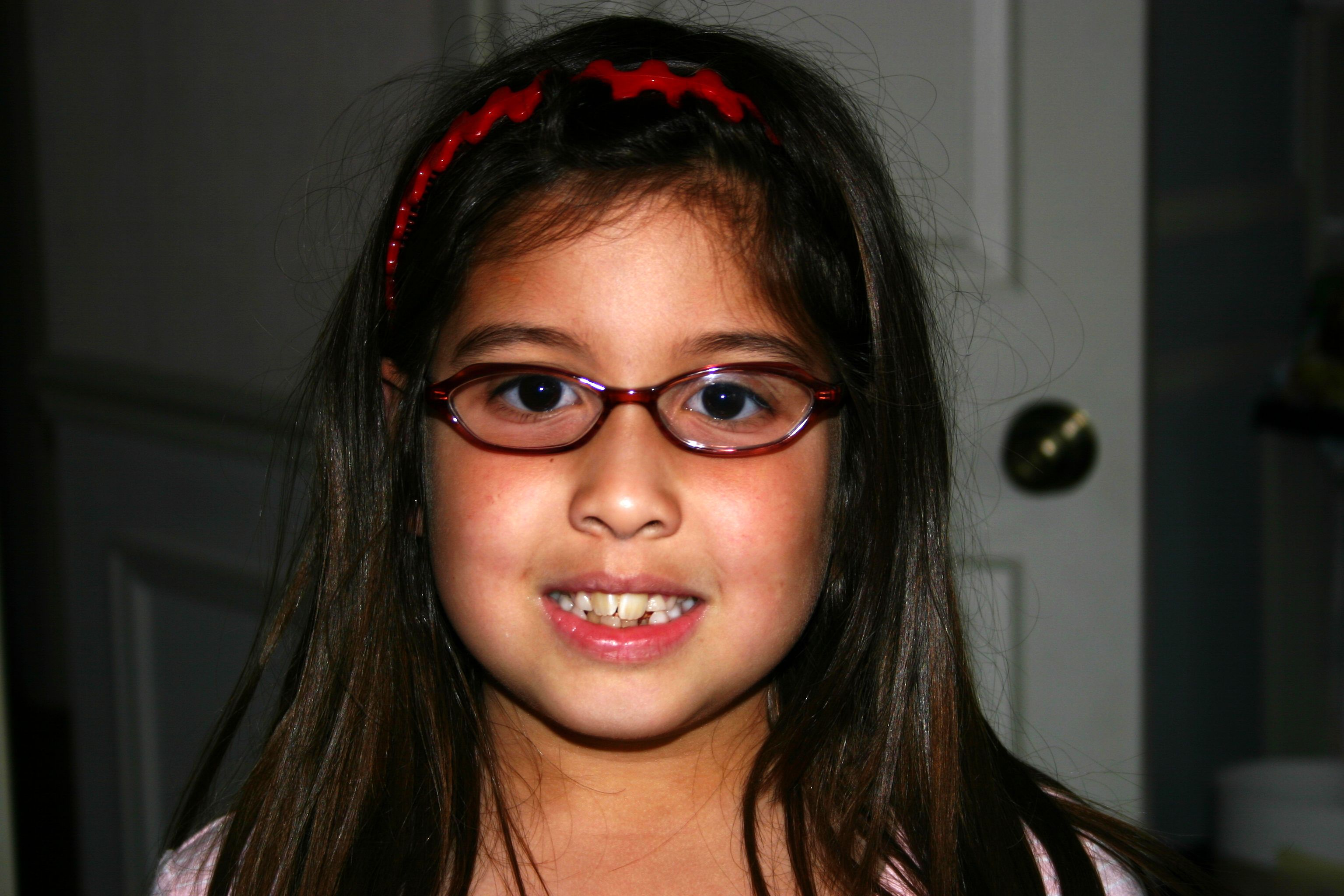 Facial With Braces And Glasses