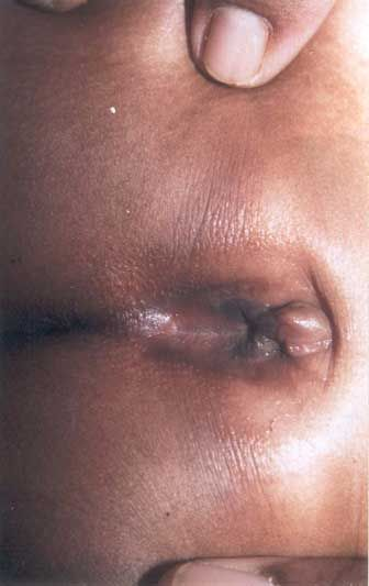 Labial Adhesion