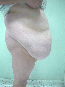 Caso 12  Gigantomastia  Mujer  61 años