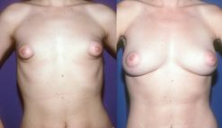 Tuberous Breasts  Tribeca Plastic Surgery Center