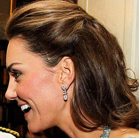 Kate Middleton Scar