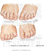 , Syndactyly, Congenital Curly Toe, and Overlapping Fifth Toe