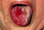 Tongue of elderly woman with oral candidiasis  Stock Image M130/0371