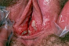 Vulval ulcers  unknown cause  Stock Image M850/0190  enlarged
