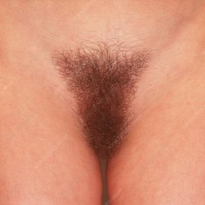 Pubic hair - Stock Image P720/0203 - Science Photo Library