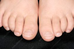 Curly toes  Stock Image C002/4864  enlarged  Science Photo Library