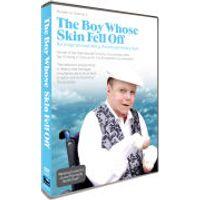 Boy Whose Skin Fell Off