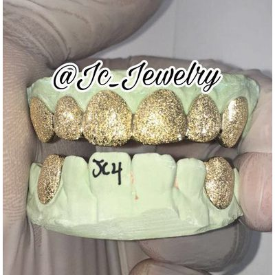 6 Top & 2 bottom Diamond Dust Gold Grillz made in white, rose or yellow gold, 10