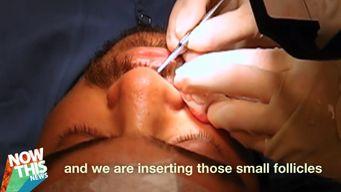 Les implants pour moustache, ça existe