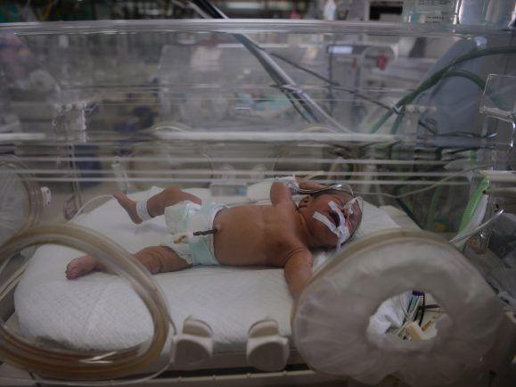 Säuglingssterblichkeit