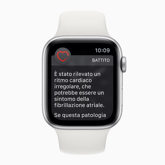 Apple Watch showing irregular heart rhythm warning.