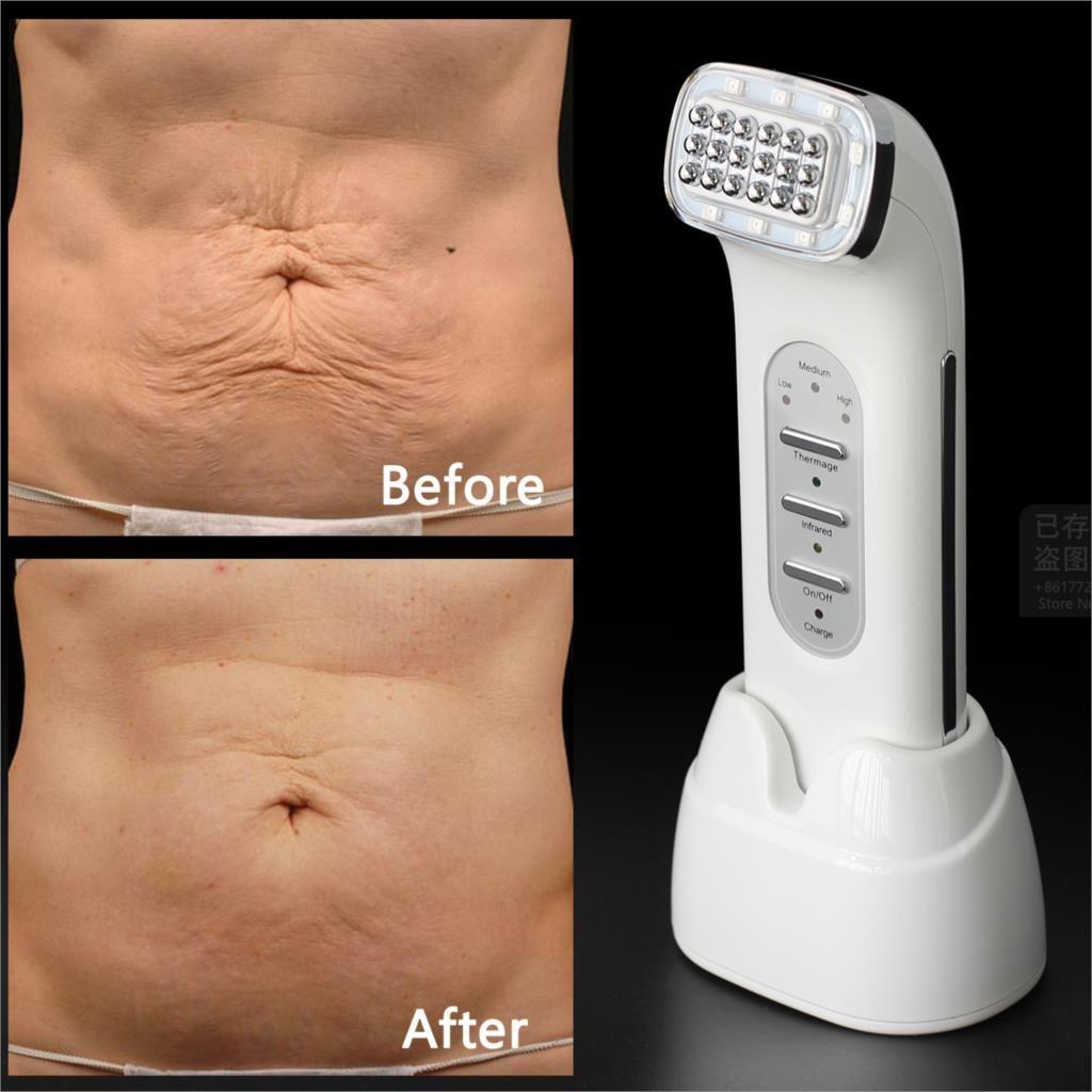 Réel supprimer les rides Dot Matrix Facial radiofréquence levage visage Lifting corps soins de la peau dispositif de beauté 110-240V