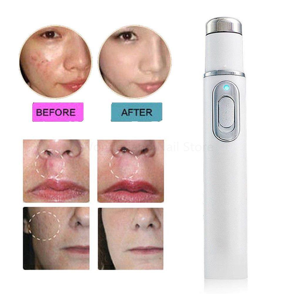 Drop Ship NOUVELLE 1 pc Médical Bleu Lumière Laser Thérapie Traitement de L'acné Stylo Anti Rides Déménagement Pores Dispositif Massage Relax soins de la peau