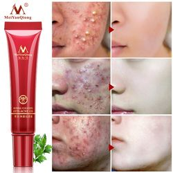 High Quality Herbal Cleansing Face Anti acne treatment cream Herbal scar removal oily skin Acne Spots skin care face