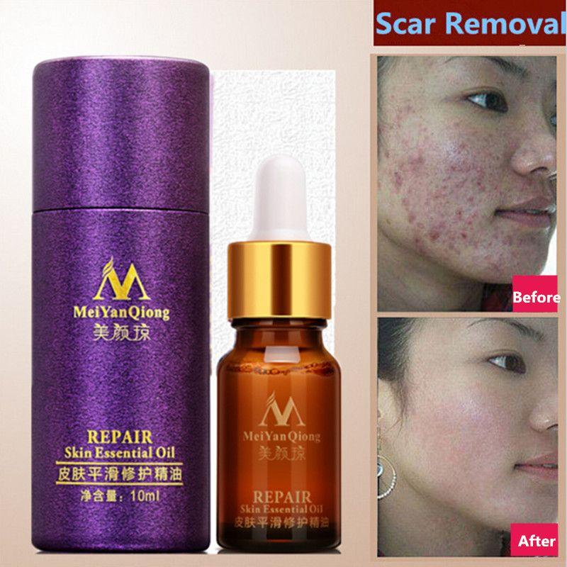 Scar Repair Skin Essential Oil Lavender Essence Skin Care Natural Pure Remove Ance Burn Strentch Marks Scar Removal 10ML