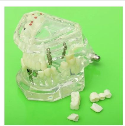 Dental Implant Disease Teeth Model with Restoration & Bridge Tooth Ideal for treatment planning discussions with patients