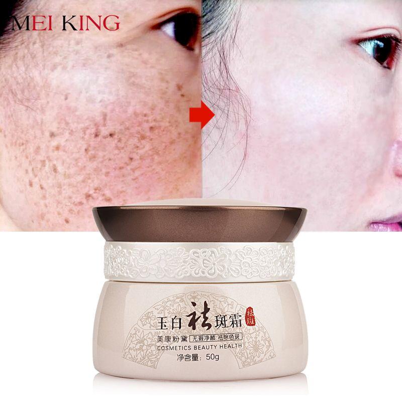 MEIKING Sommersprossen entfernung creme Aufhellen Bleaching Anti-Aging Tag Creme Hautpflege Entfernen Sonnenbrand Pigmentierung Chloasma Creme 50g