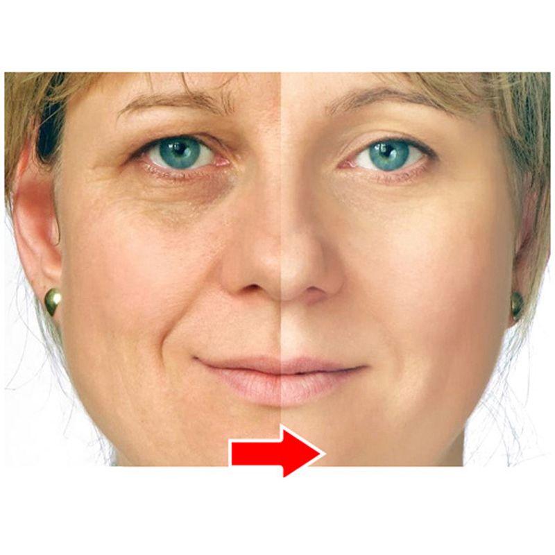 Ageless Argireline Peptide Solution And Anti Wrinkle Cream Anti Wrinkle Anti Aging Remove Crow's Feet Wrinkles Skin Care