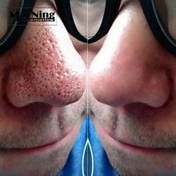 Blackhead Remover 50pcs Nose Stripes to Remove Acne Nose Black Heads Deep Cleaning