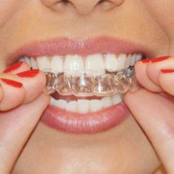 Genkent 2 Paires Thermoformage Dentaire Protège-dents Dents Blanchissant Plateaux Blanchiment Des Dents Blanchissant Bouche Garde Soins Hygiène Bucco-dentaire