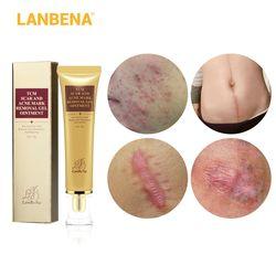 LANBENA Acne Scar Removal Cream Skin Repair Face Cream Acne Spots Acne Treatment Blackhead Whitening Cream Stretch Marks 30ml