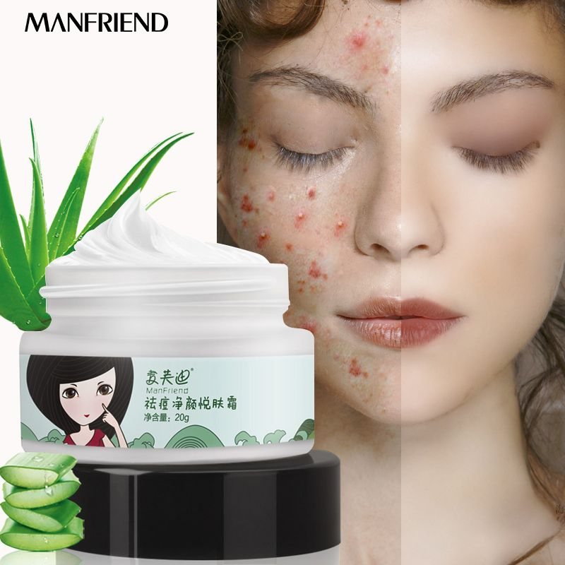 Face Care Acne Net Yan Yue Skin Cream Remove Acne Gel Whitening Moisturizing Skin Care Spots Face Care Treatment Oil Control