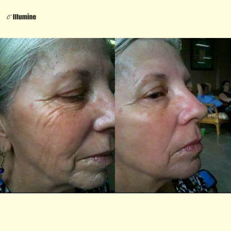 Бото x мгновенно ageless кислоты Уход за кожей лица Лифт мощный против морщин Anti-Aging лица Уход за кожей ботулинического концентрат