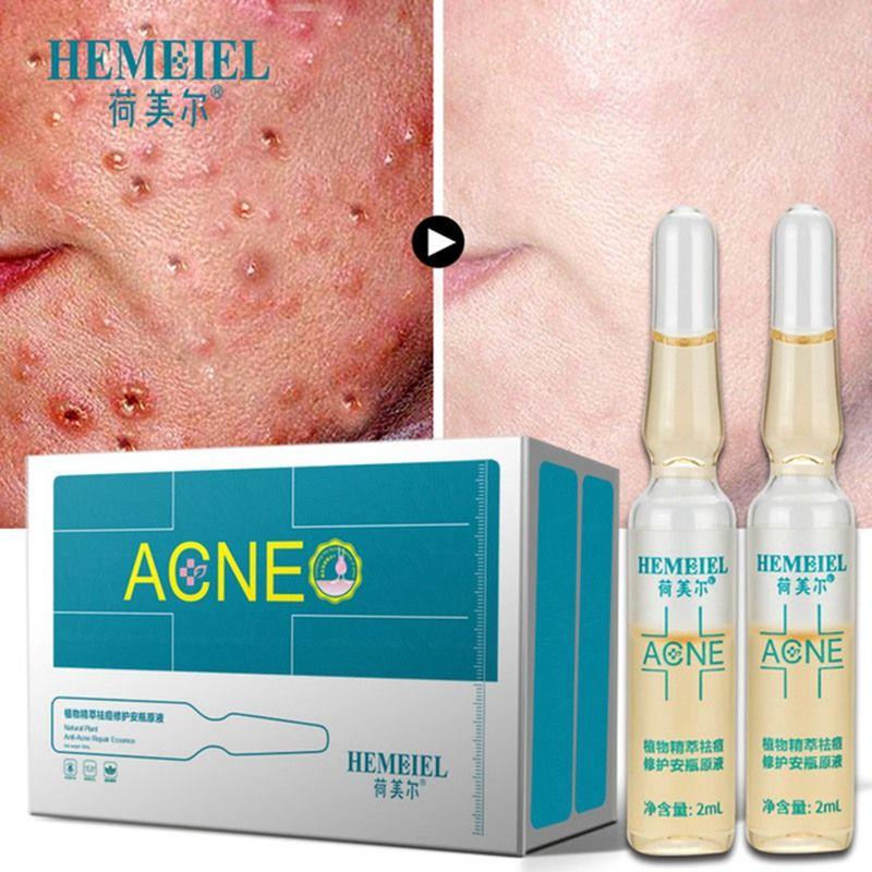 HEMEIEL Natürliche Pflanzliche Anti-Akne Narbe Entfernung Gesicht Serum Hautpflege Pickel Entferner Bleaching Reparatur Akne Behandlung Essenz