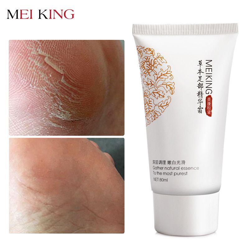 MEIKING bébé soin des pieds Exfoliation profonde pour les pieds peel Anti séchage supprimer peau morte Lotion pour les pieds crème exfoliante masque pour les pieds 80g