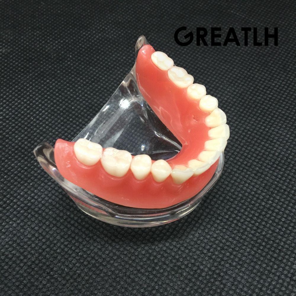 Dental Overdenture Interior Mandibular Lower Teeth Model Mandibular With Implant Restoration Tooth Medical Dental Teaching Study