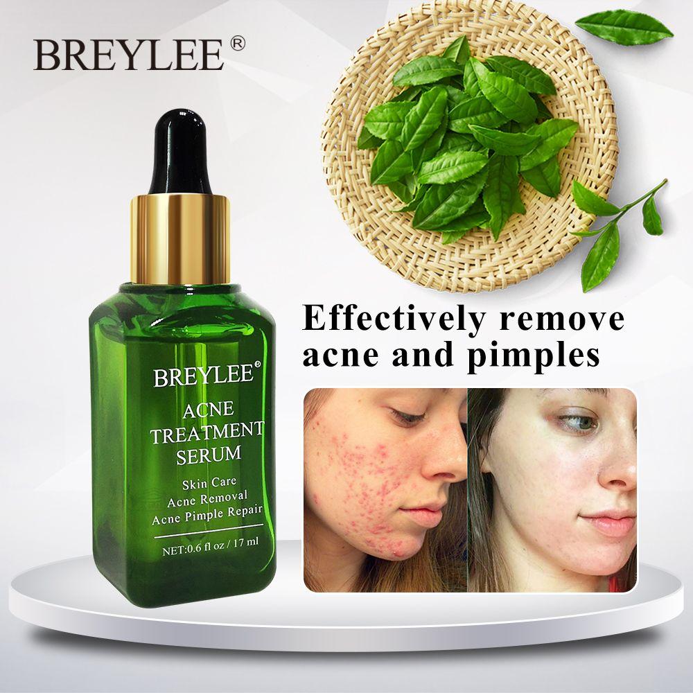 BREYLEE traitement de l'acné sérum visage Essence du visage Anti acné cicatrice enlèvement crème soins de la peau blanchiment réparation bouton dissolvant pour l'acné