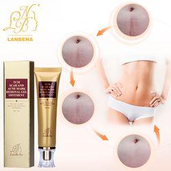 LANBENA Cream Acne Scar Removal creme Face Cream Skin Repair  Spots Acne Treatment Blackhead Whitening Cream Stretch Marks 30ml