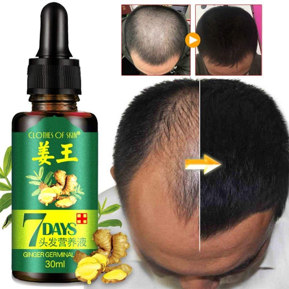 Huile essentielle de croissance de cheveux huile germinale de gingembre croissance rapide de cheveux Anti-chute de cheveux traitement d'alopécie beauté sérum Dense de croissance de cheveux