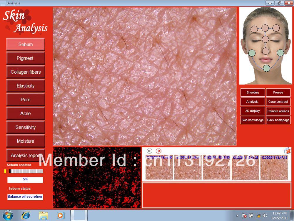 Promotion DHL free HOT SALE 5.0 MP High Resolution Digital CCD USB Skin Camera Skinscope Skin Analyzer Skin Scope Skin Diagnosis