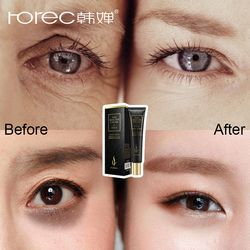 ROREC Hyaluronic Acid Eye Cream Anti-Wrinkle Remover Dark Circles Eye Essence Against Puffiness Anti Aging Ageless Instantly
