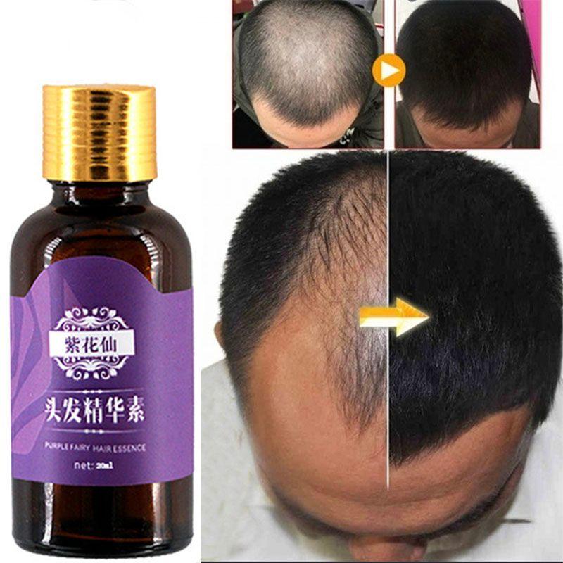 Produits De Perte De cheveux Naturel Sans Effets Secondaires Élèvent des Cheveux Repousse Plus Rapide Produits de Croissance De Cheveux