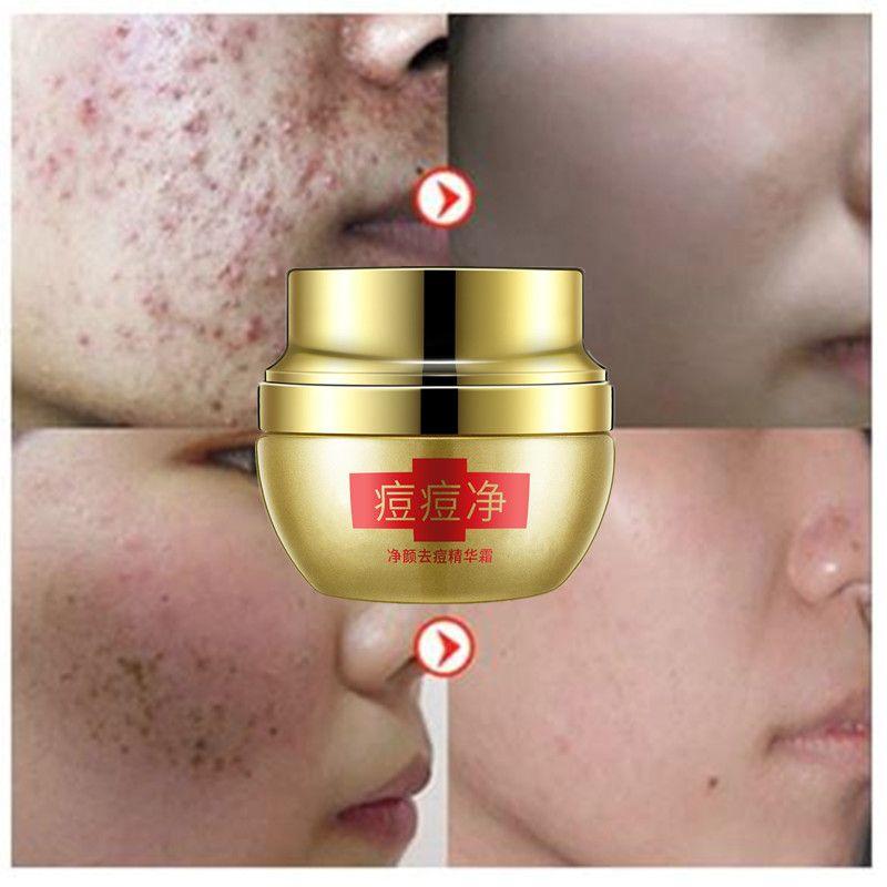Acne Treatment Blackhead Remover Face Cream Skin Care Acne Scars Black Head Mite Face Care Whitening Cream Scar Repair 25g