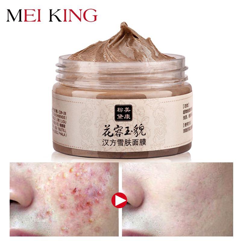 MEIKING masque visage points noirs nettoyage en profondeur purifiant décoller la tête noire blanchissant hydratant masques faciaux soins de la peau 120g