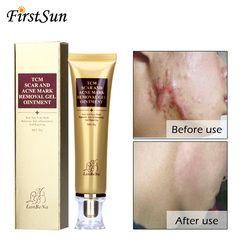 LANBENA 30ml Acne Scar Stretch Marks Remover Cream Skin Repair Face Cream Acne Spots Acne Treatment Whitening Cream 30ml