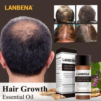 LANBENA Быстрый мощный средство для роста волос продукты эфирные масла для жидкого лечения предупреждающий потерю волос уход за волосами Andrea 20...