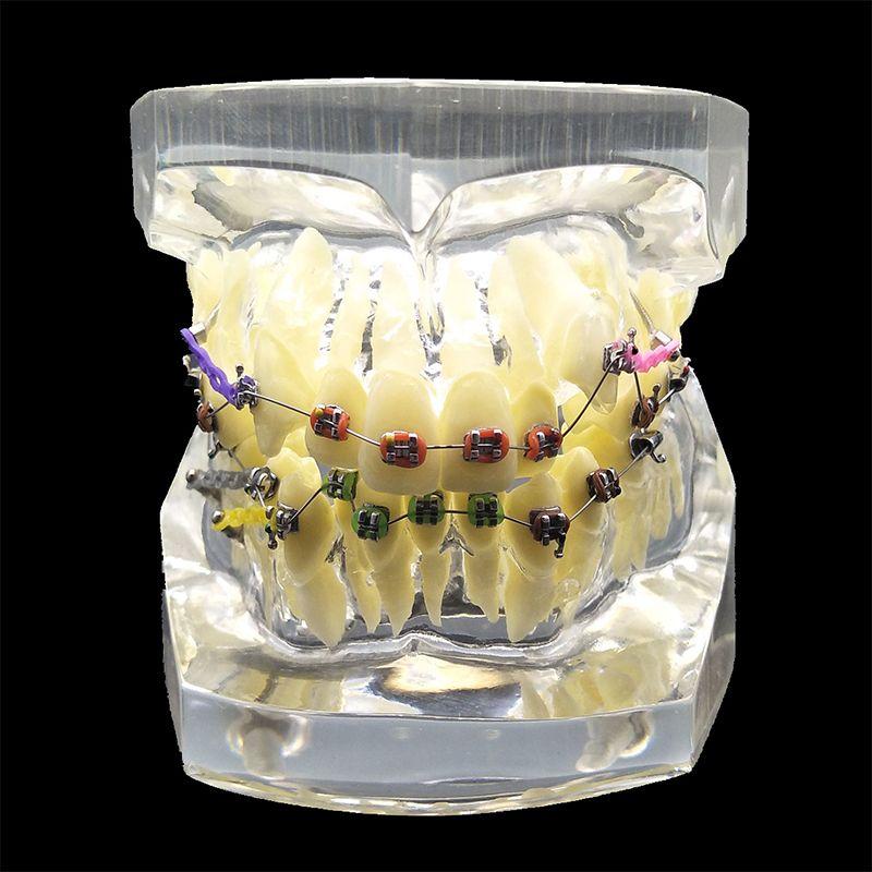 1 UNID Dental Ortodoncia Modelo de Estudio Dientes Maloclusión Modelo De Ortodoncia Con Colorido Transparente Soportes y Venta Caliente para la Enseñanza