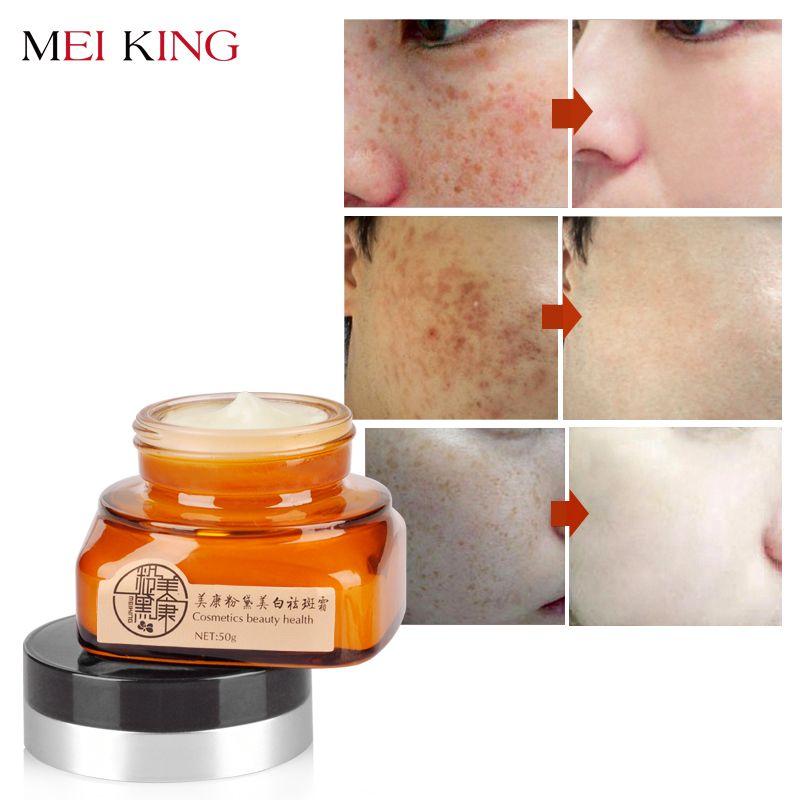 MEIKING Face Cream Skincare Remove Freckles Day Cream Skin <font><b>Care</b></font> Bleaching Lightening Remove Facial Moisturizing Whitening Cream