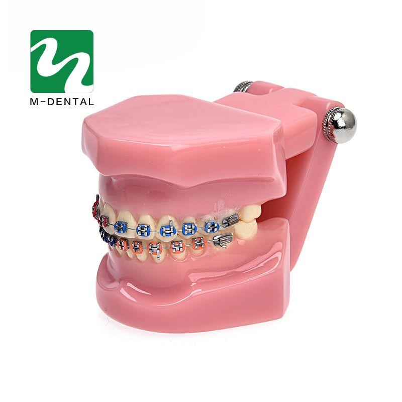 1 PC Dentaire Orthodontie Modèle D'étude Dents Orthodontique Modèle Avec Supports Métalliques Pour L'enseignement de Haute Qualité